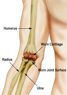 Arthritic_elbow_joint