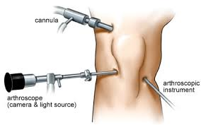 Arthroscopy Knee Surgery