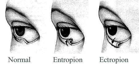 Eyelids-Normal-Entropion-Ectropion