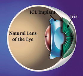 Implantable-Collamer-Lens