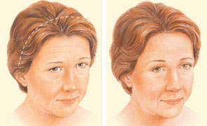 brow-lift-coronal-incision