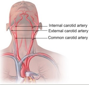 carotid_arteries_pic