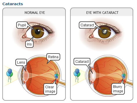 cataracts_1