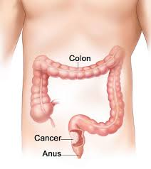 describe the relationship between polyps and cancer development