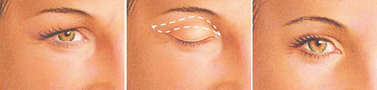 eyelid-surgery-upper-eyelid-incision