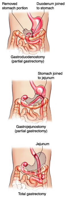 Gastrectomy | Deepam Medi Tours