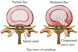 herniated-disc-surgery-300x201