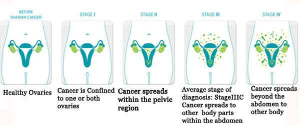 cervical cancer term papers