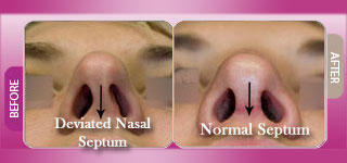septoplasty 1